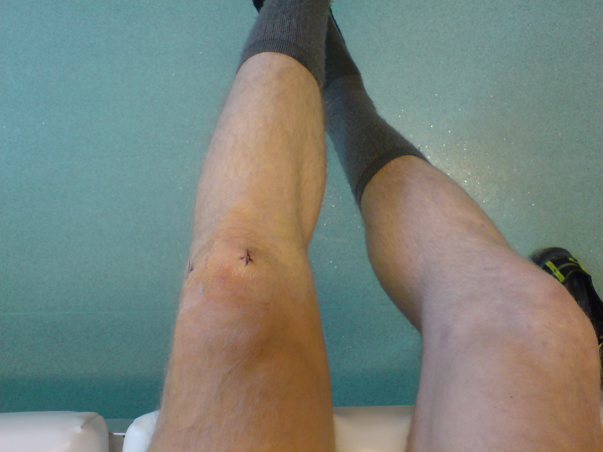 Knie op ambulant